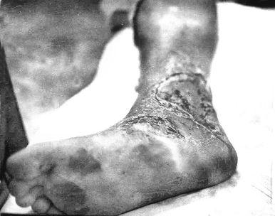 Leg Yokosuka '69 II